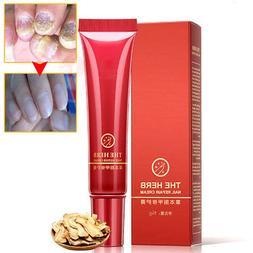 15g Nail Fungal Treatment The Herb Foot Repair Cream Protect