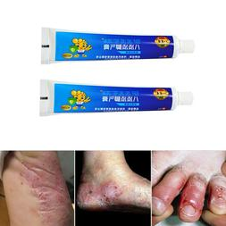20g athlete s foot ointment antifungal cream