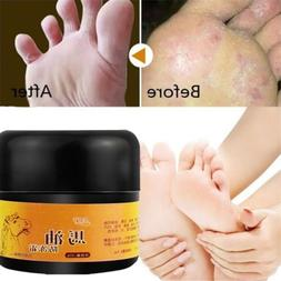 3*Horse Oil Hand Foot Crack Cream Heel Chapped Peeling Repai