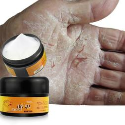 Chapped Products Feet Heel 30g Cream Dry Horse Oil for Rough