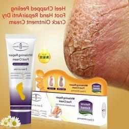 Crack Heel Cream Repair Anti Crack Whitening Cream Foot Peel