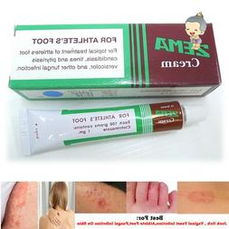ZEMA Cream Dermatitis dermatological skin or Foot diseases T