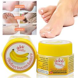 Foot Care Cream For Cracked Dry Heels Rough Broken Skin Bana