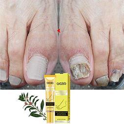 EDTara Foot Care Cream Ginseng Nail Antifungal Treatments Cr