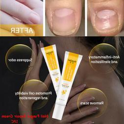 Foot Care Nail Repair Cream Toe Nail Fungus Treatment Bright