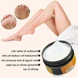 Foot Hand Cream Anti Chapping Horse Oil Dry Skin Care Peelin