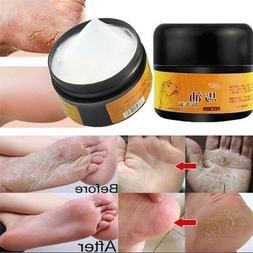 Natural horsee oil hand foot Peeling repair cream feet massage Cream