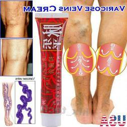 Herbal Ointment Varicose Veins Vasculitis Treatment Cream Fo