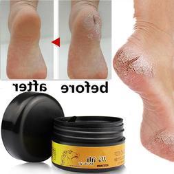 Horse Oil Feet Cream Care Athlete's Foot Itch Blisters Peeli