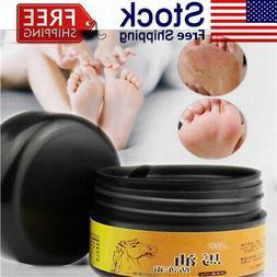 Horse Oil Feet Heel Cream Anti Chapping Peeling Repair For F