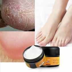 Horse Oil Foot Cream for Rough Dry Cracked/Split Foot Skin H