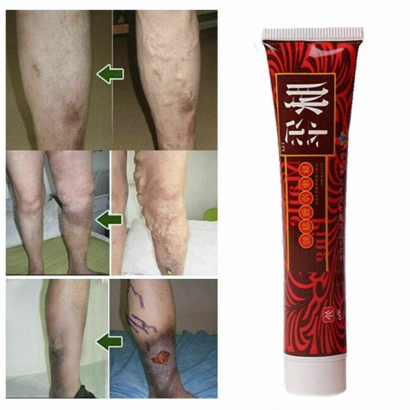 100% Herbal Ointment Varicose Veins Vasculitis Treatment Foot Leg Cream 30g