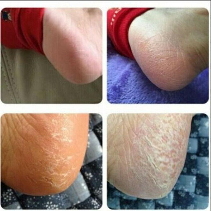 20g Cracked Heel Cream Care Feet Skin