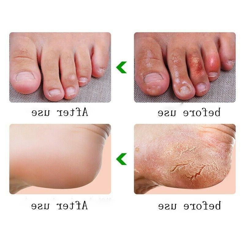 20g Balm Care For Feet Skin