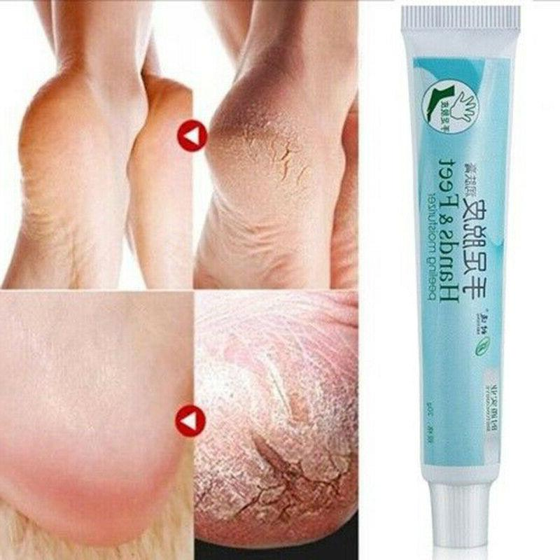 20g Heel Balm Cream Moisturizing Foot Skin Care For Rough Dry Feet