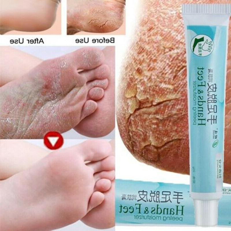 20g cracked heel balm cream moisturizing foot