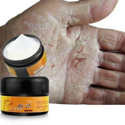 Cracked Heel Balm For Dry Feet Skin Foot