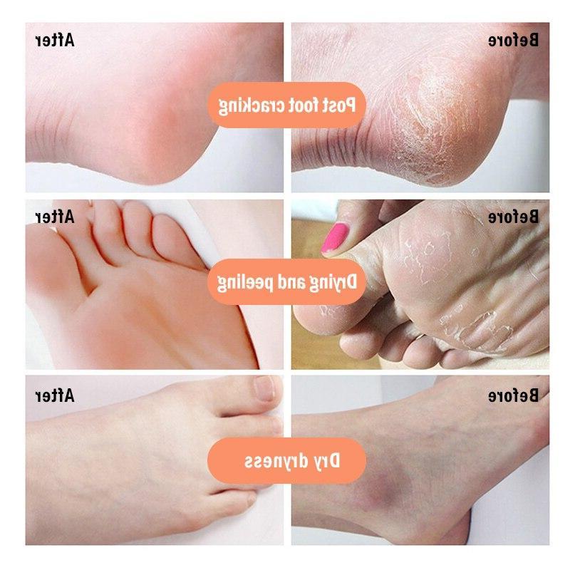 Anti-Drying Crack Skin Repair <font><b>Foot</b></font> Skin Remover <font><b>Product</b></font> Pedicure Tools