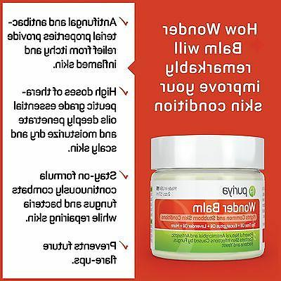 Antifungal Balm for Foot, Ringworm, and