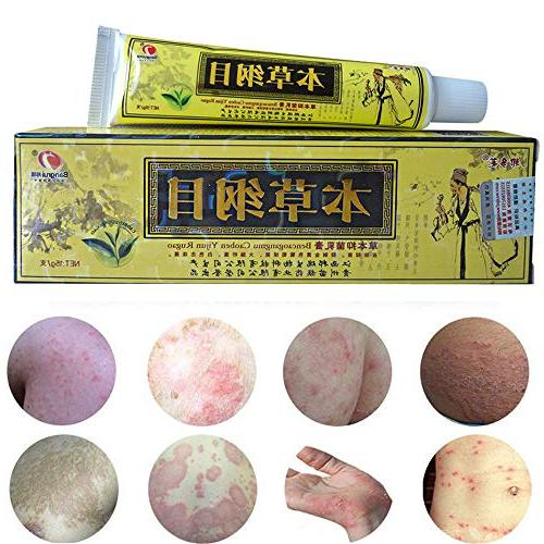 AHSAK 1pcs/Lot High Chinese Herbal Creams Dermatitis And Eczema Pruritus Psoriasis