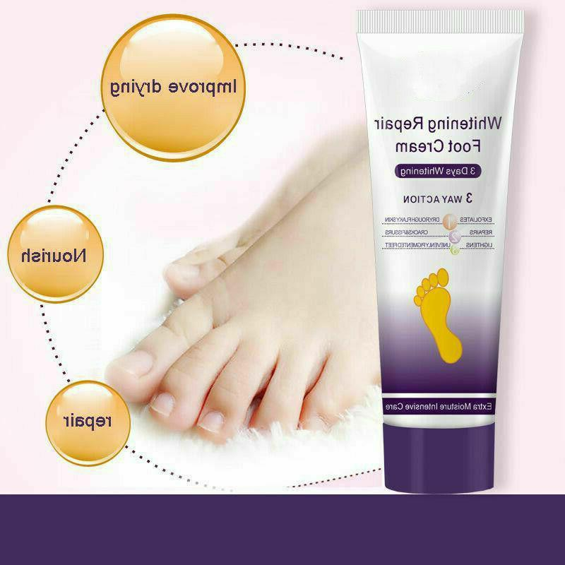 Crack Heel Anti Cream Foot Peeling