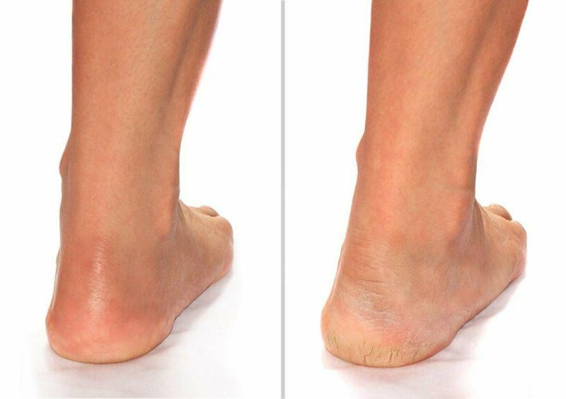 Advanced Clinicals Heel Cream (