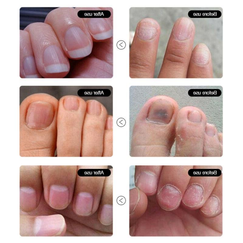 Foot Care Cream Toe Treatment Repair