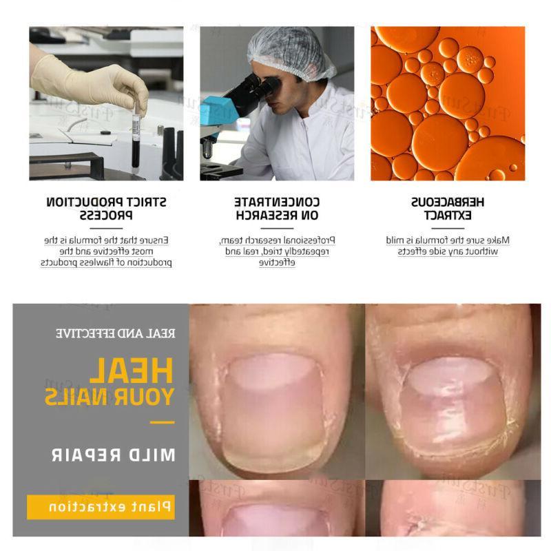 Foot Care Cream Treatment Repair
