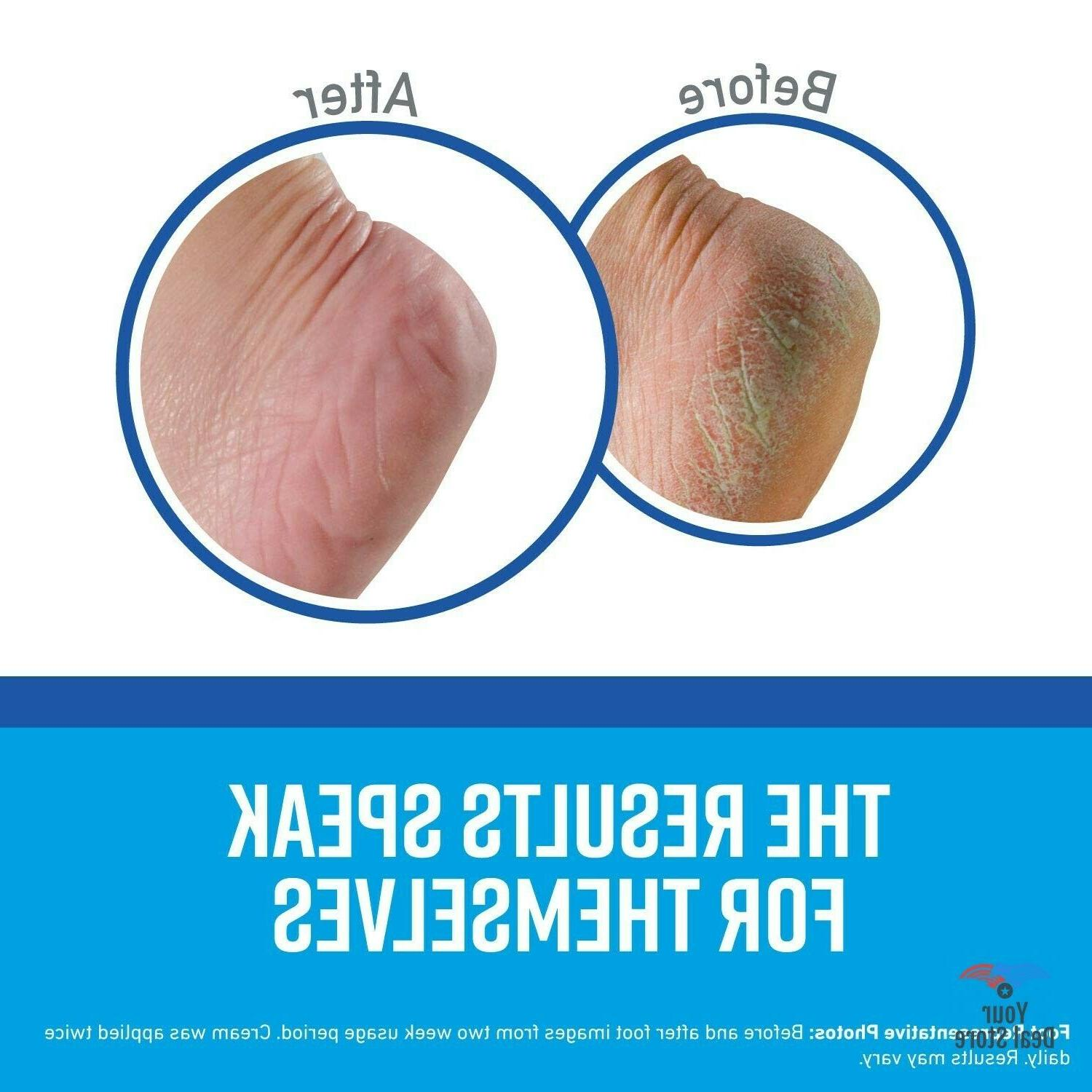 Foot Care Products Repair Cracked Feet Treatment Ointment
