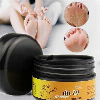 Cracked Heel Cream For Rough Dry Skin Moisturizing Foot Care 30g