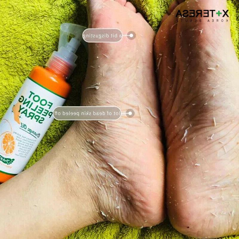 Foot Peeling Orange Skin