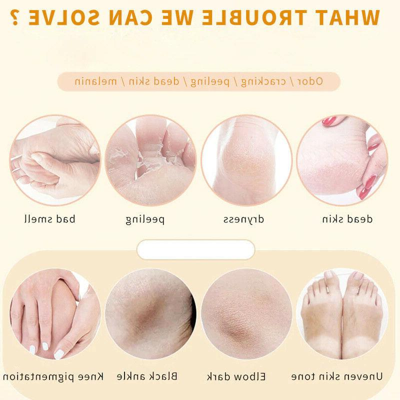 Foot Orange Skin