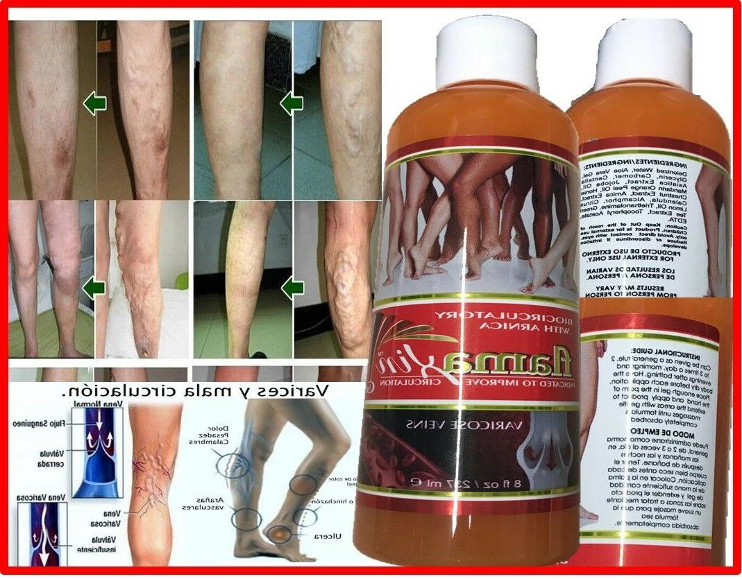 medic herbal ointment varicose veins vasculitis treatment