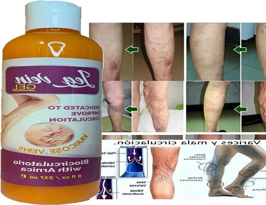 Medicine Herbal Ointment Veins