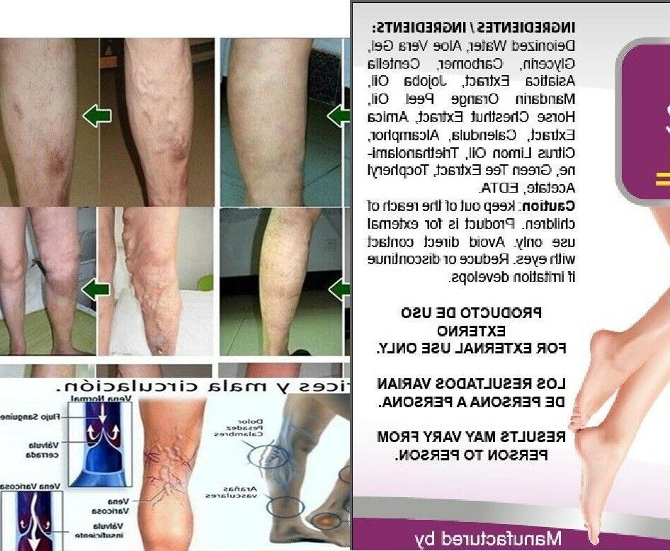 Medicine Herbal Ointment Varicose Veins Care Cream