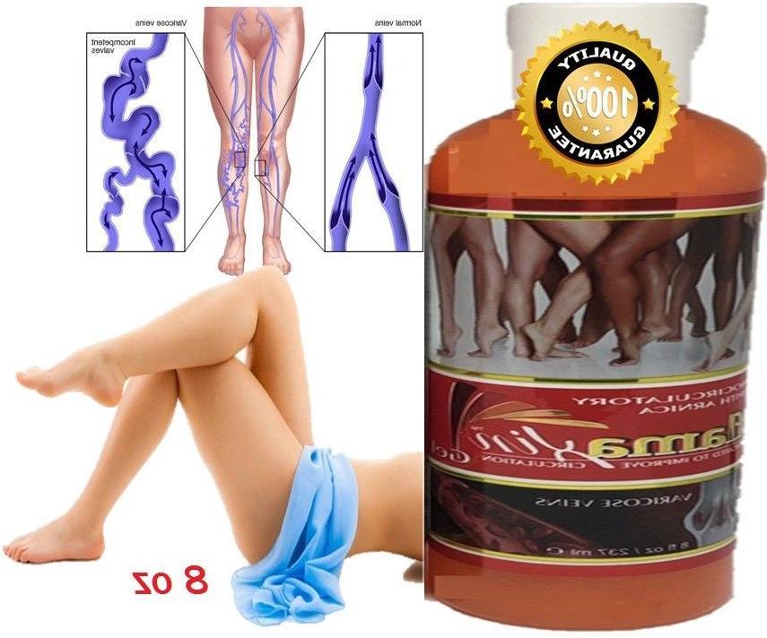 medicine herbal ointment varicose veins vasculitis treatment