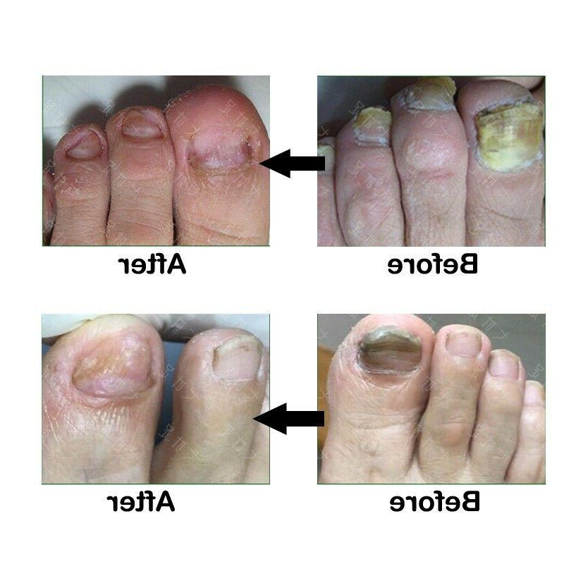 Nail Fungus Treatment Foot Care