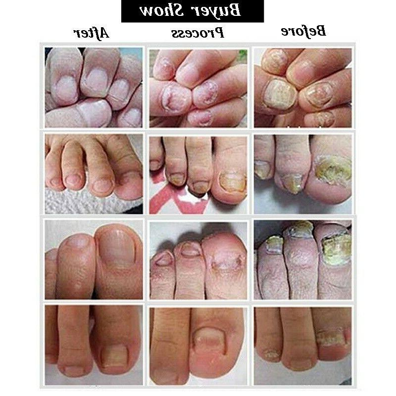 Nail Repair Herb Fungus Treatment Foot Protector Care Stop