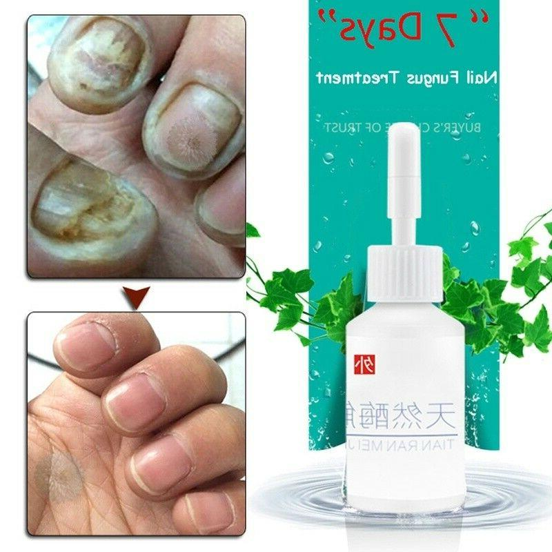Nail Herb Fungus Foot Care