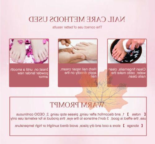 Nail Foot Care Cream Fungus Herb Repair Cream d6n