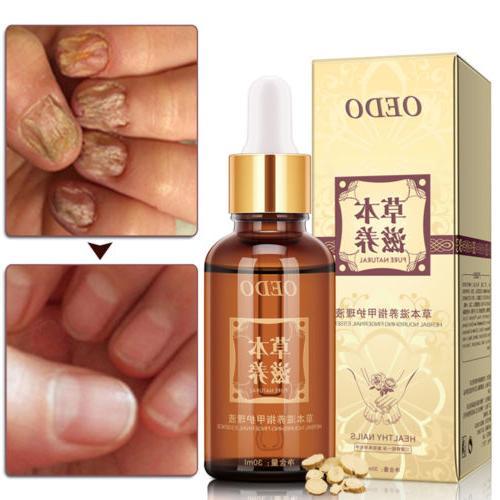 nail foot protector skin care cream fungus