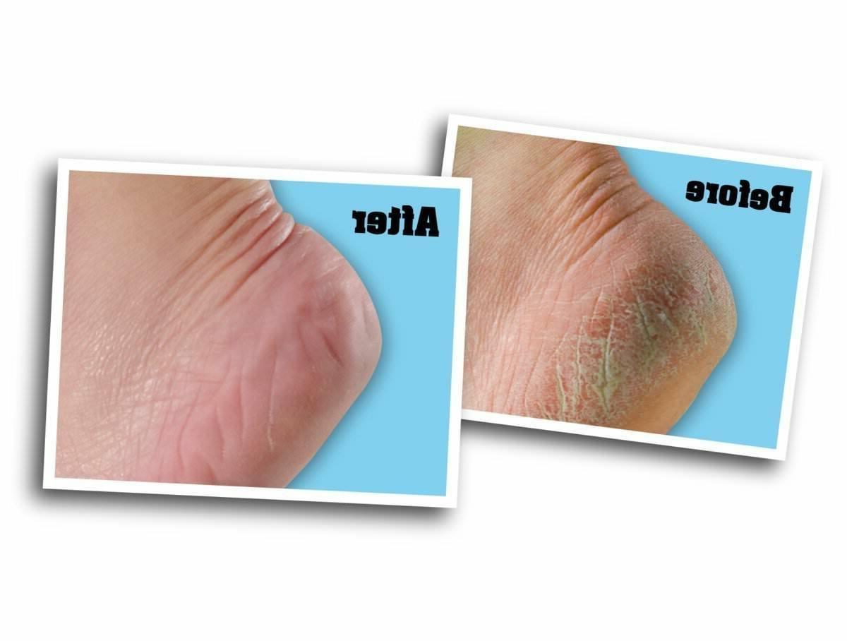 O'Keeffe's for Foot Cream Cracked Feet Heels Treatment