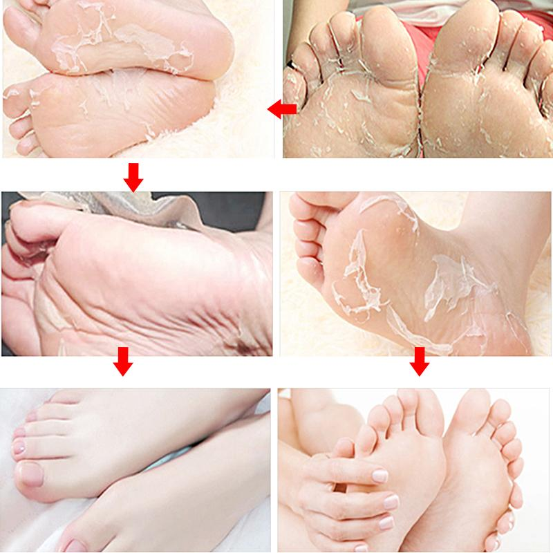 Rose Extract for Pedicure Calluses Skin Mask Hydrating for <font><b>Soft</b></font> <font><b>Feet</b></font> Socks