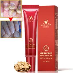 Nail Foot Protector Skin Care Cream Fungus Treatment Herb Na