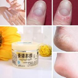Snake Oil Antifreeze Anti-crack Antipruritic Hand Foot Cream
